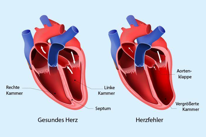 Anatomie Herz hei Herzklappenfehler