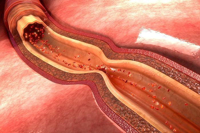 Querschnitt Gefäß Carotisstenose