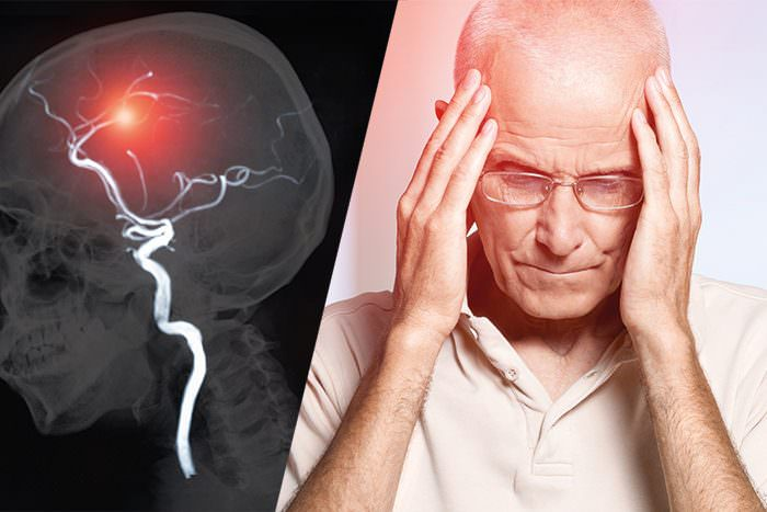 Herzrhythmusstörung und Schlaganfall